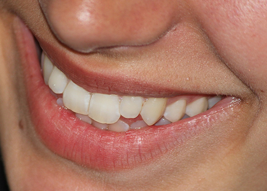 smile-665433_1280